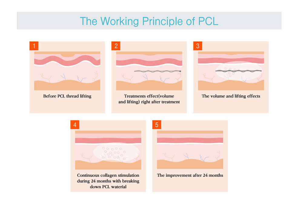 pcl thread lifting